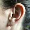 Resonance Audiology (8)